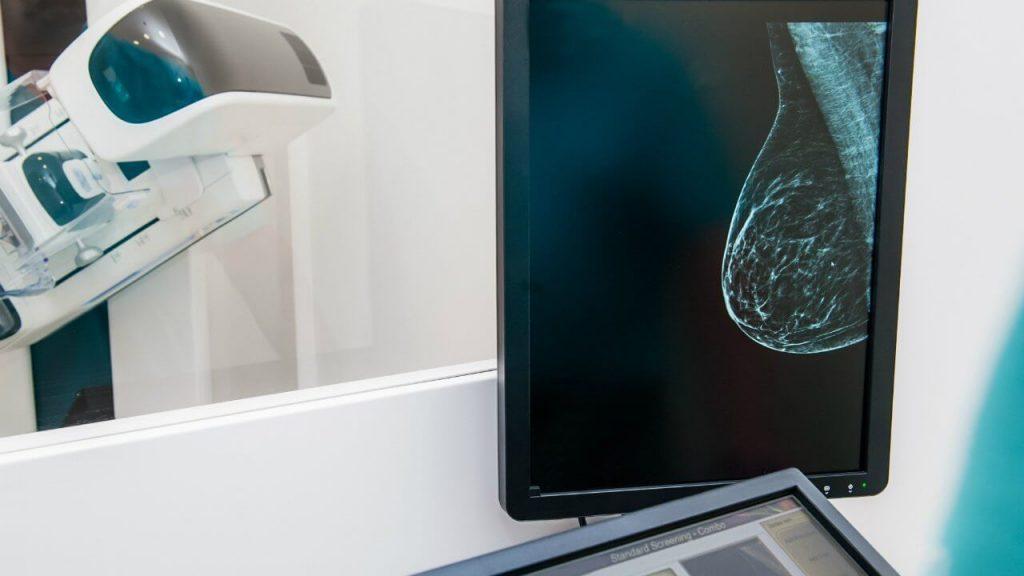 aclara tus dudas sobre la mamografia y supera tus miedos625334894 1