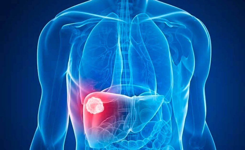 clinica internacional gastroenterologia higado graso portada 1