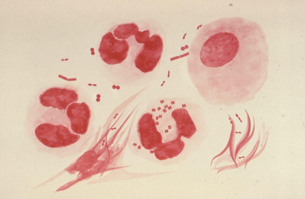 enfermedades transmision sexual nuevas bacterias medicos salud portada gonorrea
