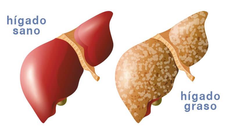 esteatosis hepatica 1