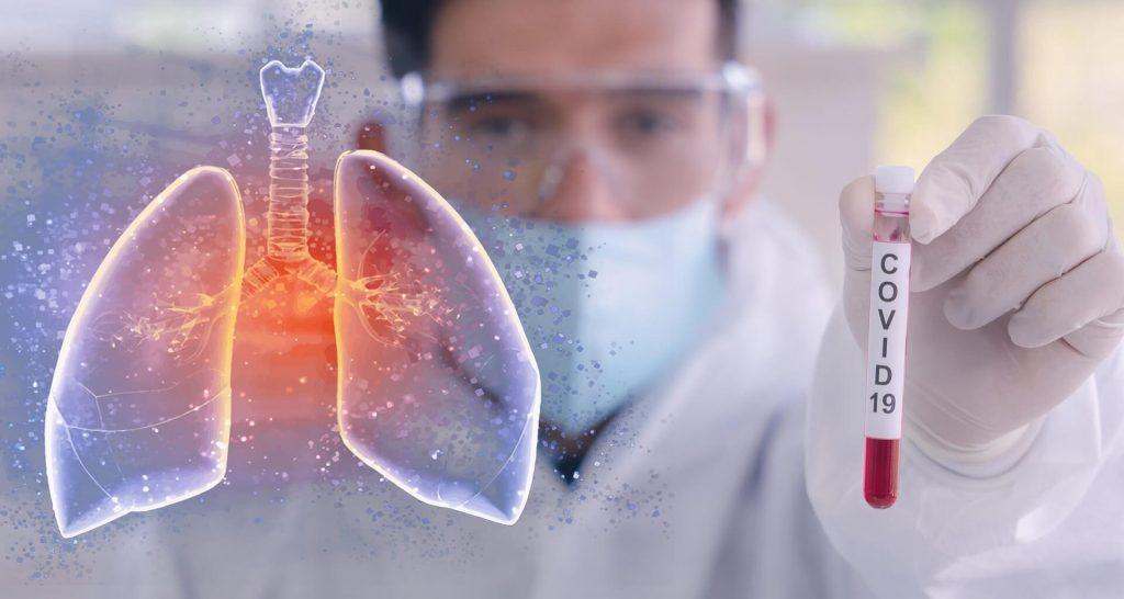 12 Tips para Cuidar tu Salud en Tiempos de Pandemia