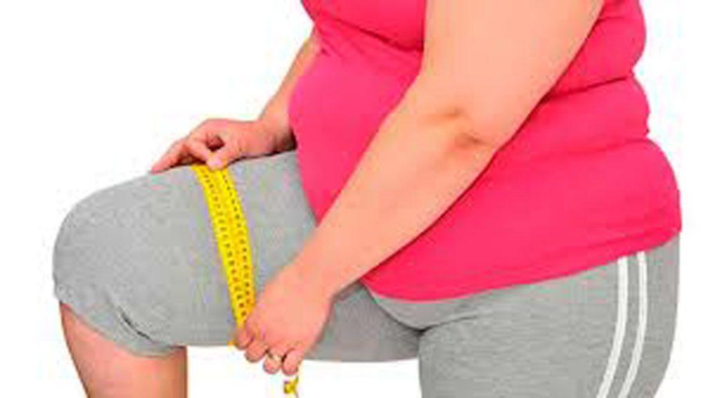 obesidad morbida 2