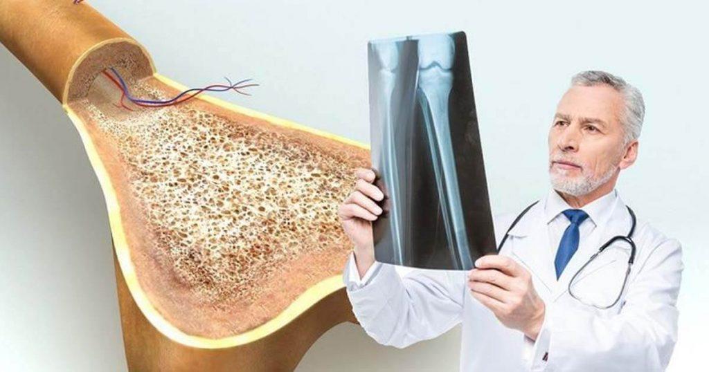 osteoporosis causas