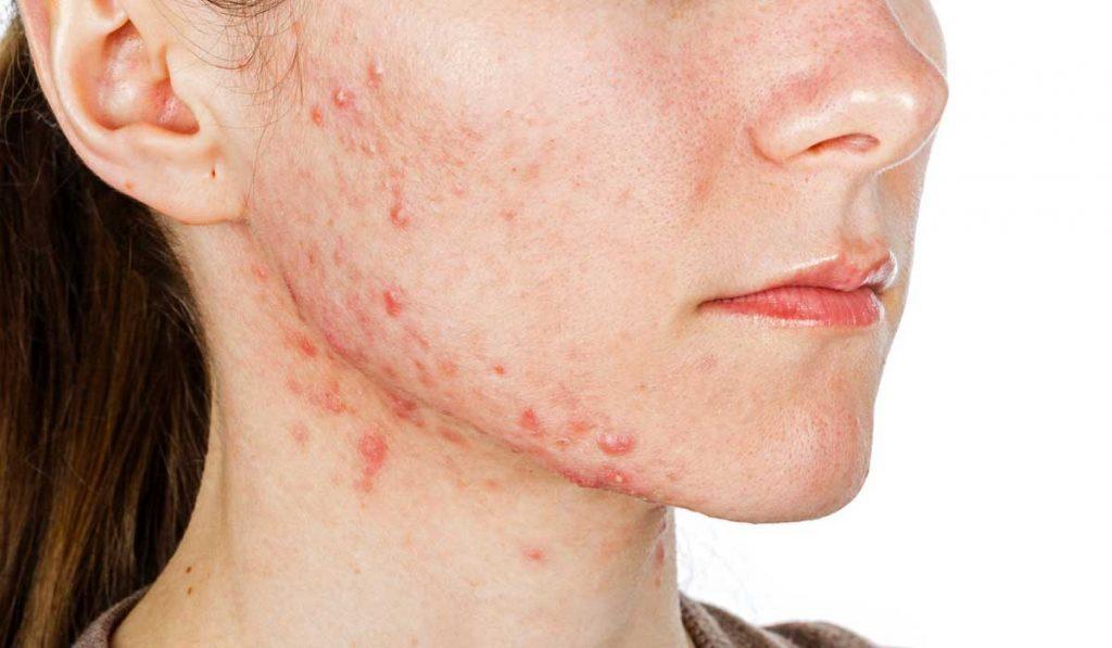 por que aparece acne en esas zonas 1
