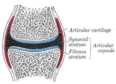 que es la artrosis 2