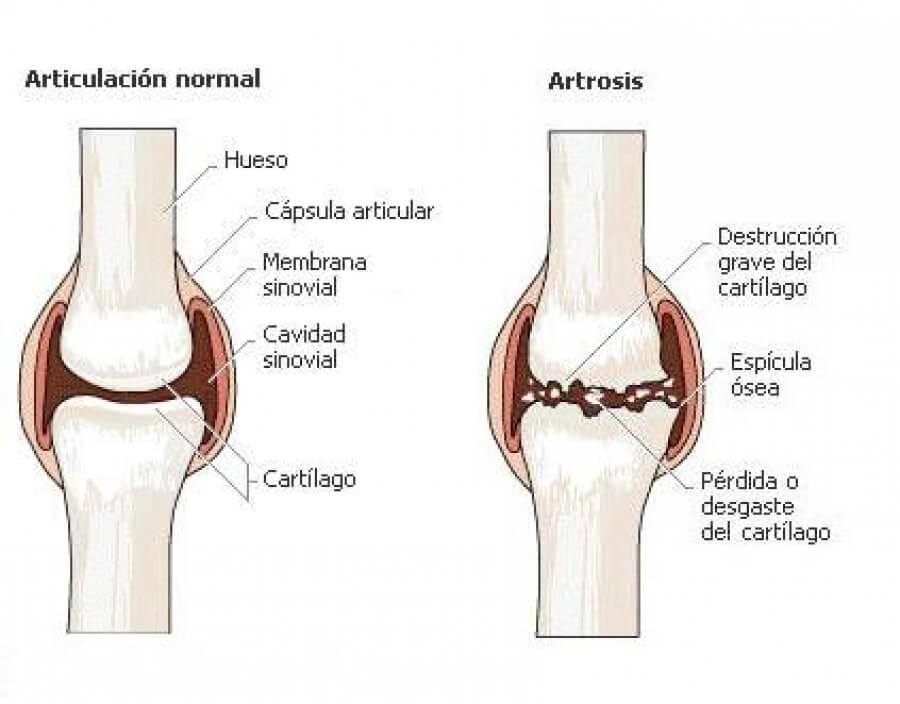 sintomas de artrosis