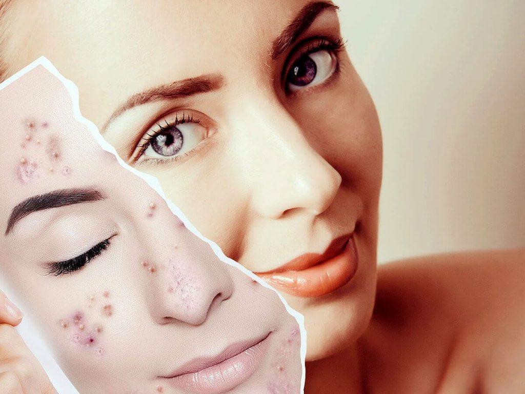 tratamientos faciales 1